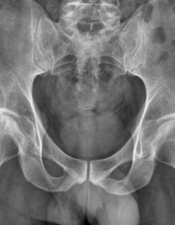Botten: necrose, osteopenie; tendinitis